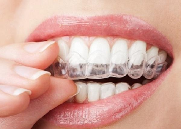 Tipos de aparelhos ortodônticos para obter o melhor sorriso